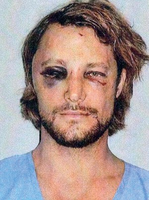 Gabriel Aubry Shows His Badly Bruised Face After Fight With Olivier Martinez