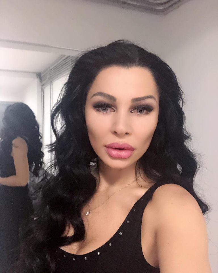 Așa arată Brigitte după intervenția de reconstrucție a feței