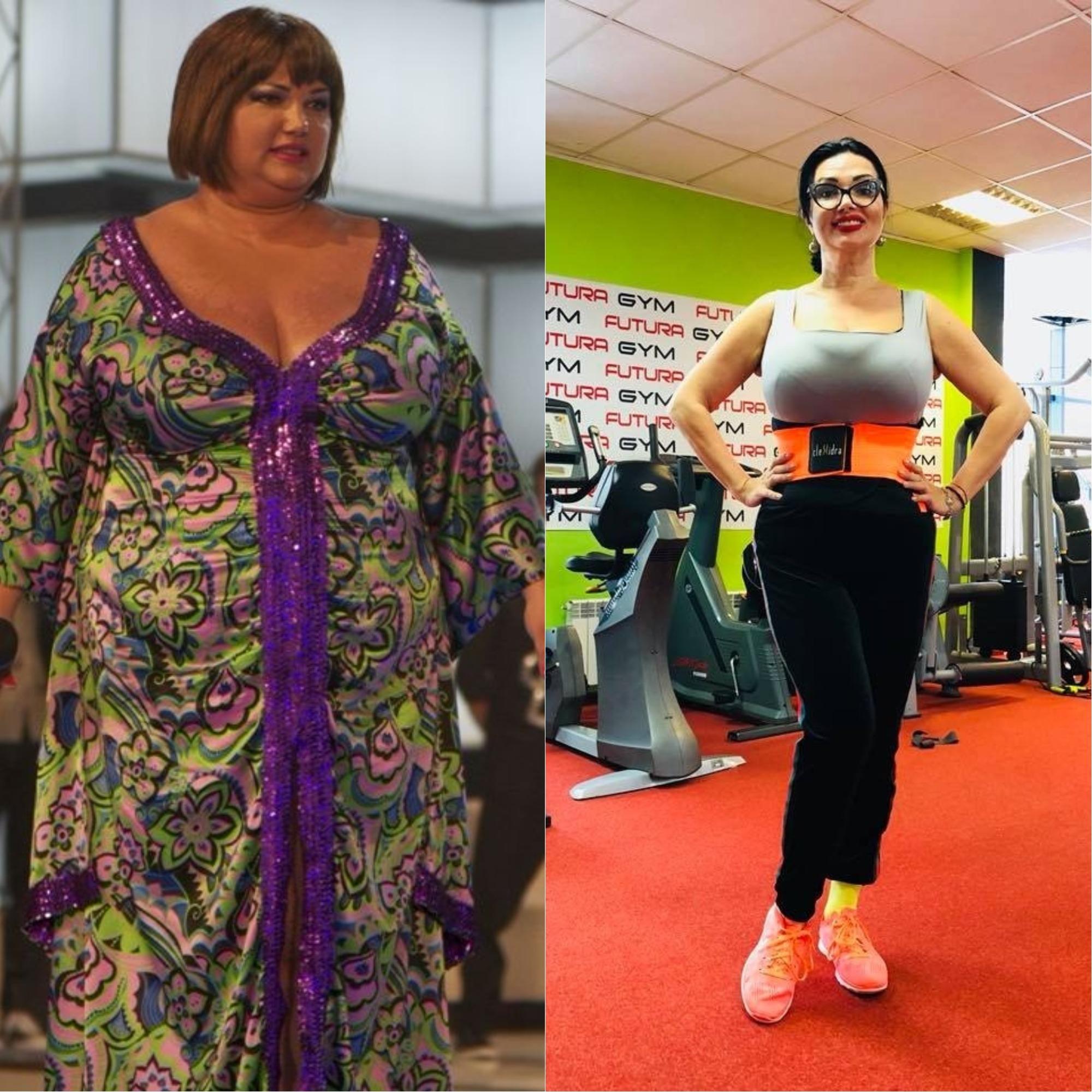 Oana Baranacea a slăbit 50 kg după operația de micșorare a stomacului