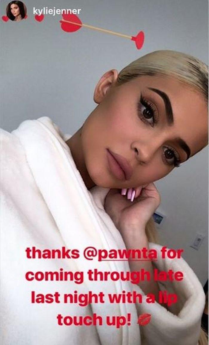 Kylie Jenner, după ce și-a injectat buzele